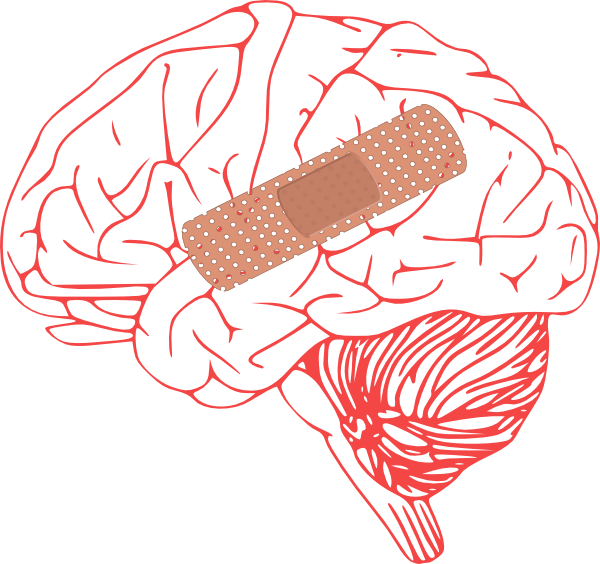 Brain Injury Clip Art At Clker Pluspng.com   Vector Clip Art Online, Royalty Free U0026 Public Domain - Head Injury, Transparent background PNG HD thumbnail