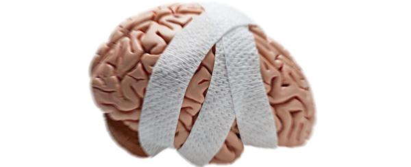 Braininjury - Head Injury, Transparent background PNG HD thumbnail