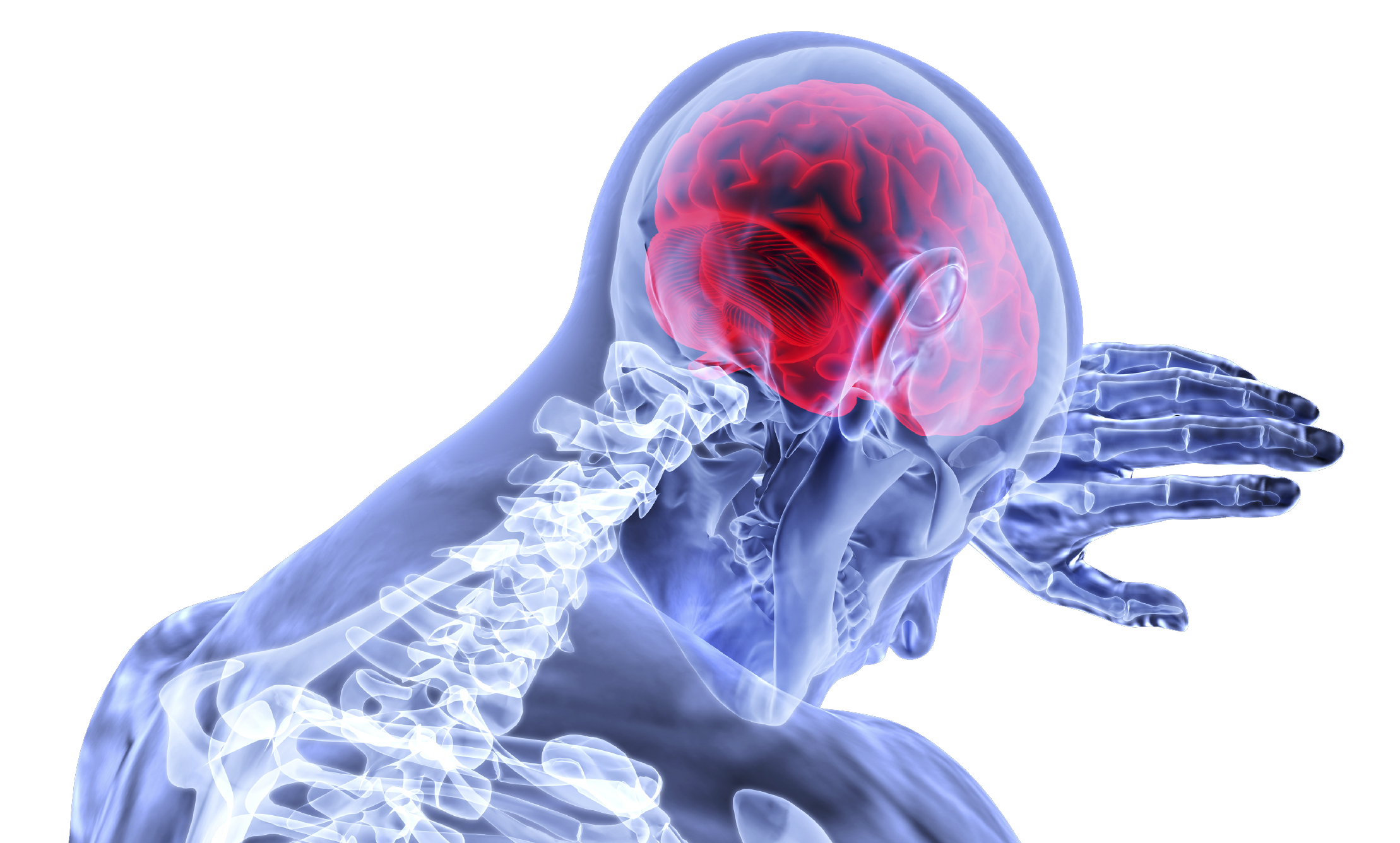 Concussions After Traumatic Brain Injury Incidents. Virginia Brain Injury Lawyer - Head Injury, Transparent background PNG HD thumbnail