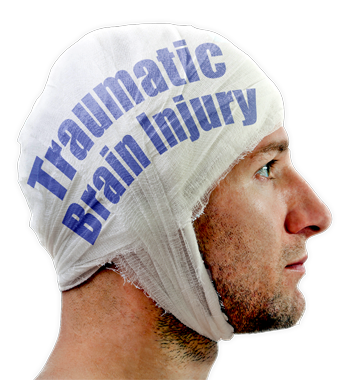 Impairments In Executive Functioning Lead To Tacoma Man With A Traumatic Brain Injury - Head Injury, Transparent background PNG HD thumbnail
