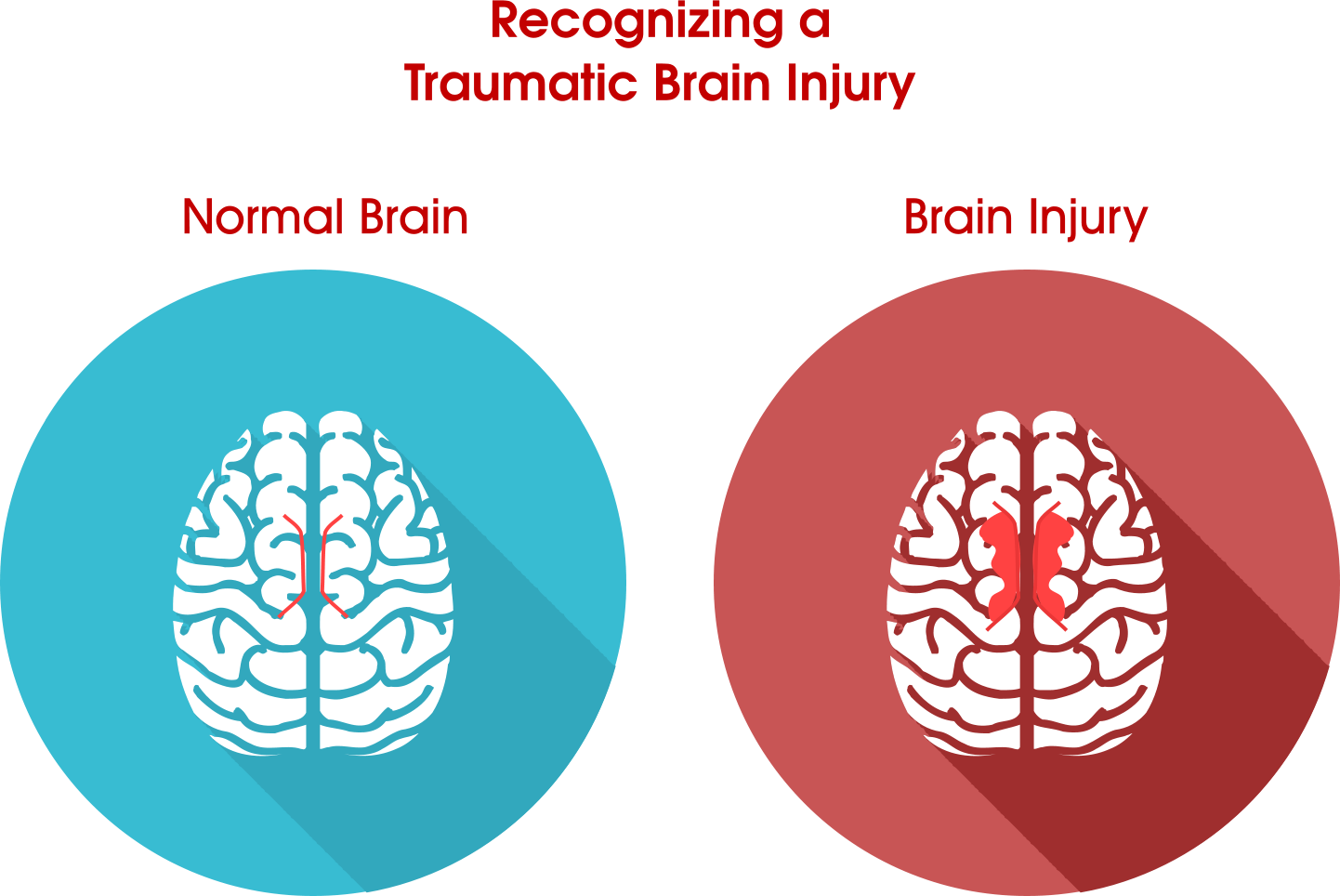 It Is Important To Know That Even A Minor Concussion Or Blow To The Head Can Cause Serious Brain Damage And Lead To Life Long Complications. - Head Injury, Transparent background PNG HD thumbnail