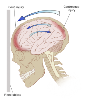 Pp Tbi.png - Head Injury, Transparent background PNG HD thumbnail
