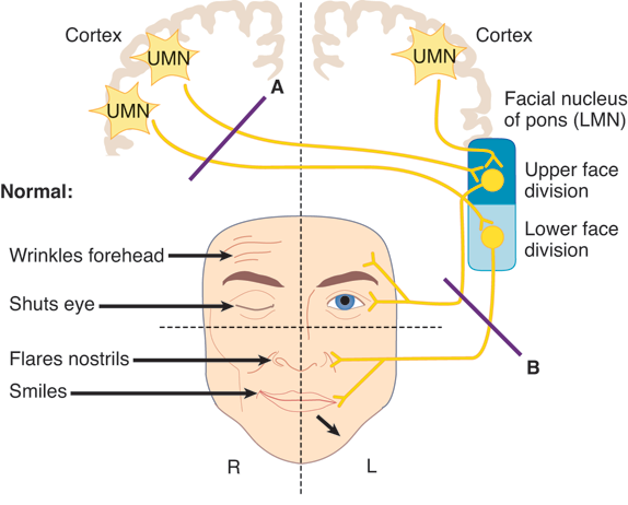 Facial Lesions Pons~With Forehead Is Ipis And Cn Vii - Ipis, Transparent background PNG HD thumbnail