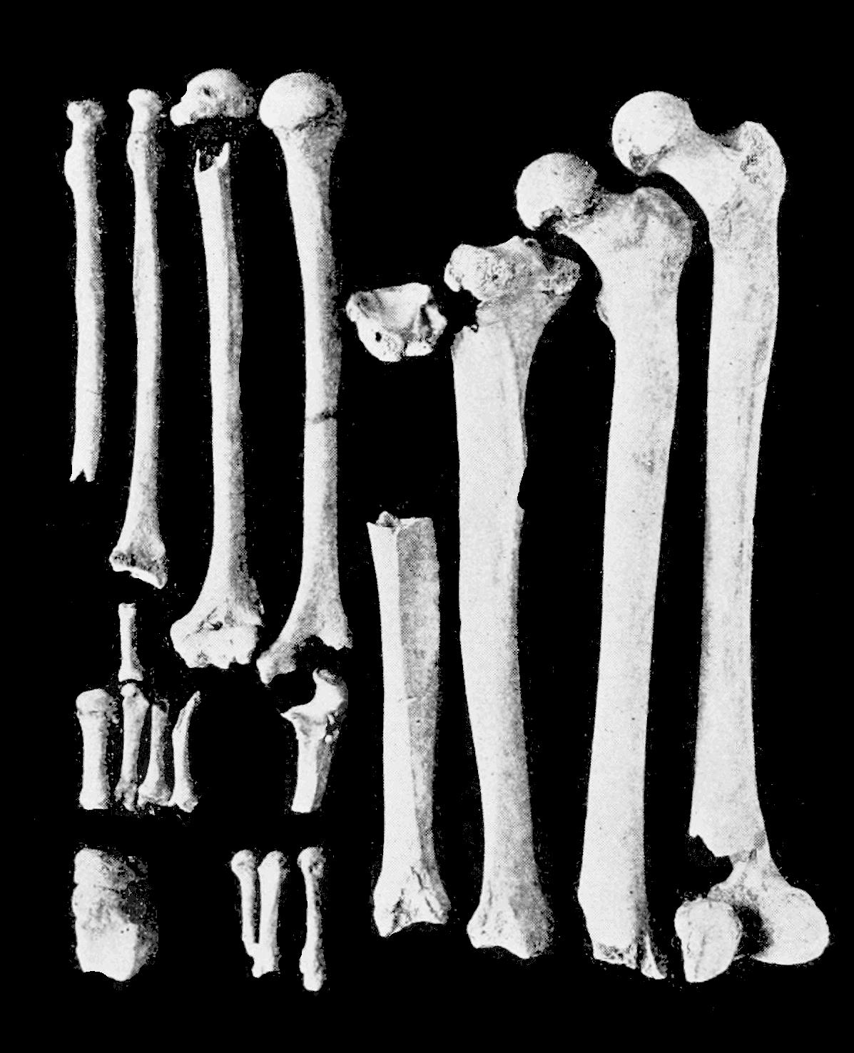 Png Skeleton Bones - File:psm V62 D474 Limb Bones Of The Lansing Skeleton.png, Transparent background PNG HD thumbnail